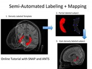 Semi-automated template based hippocampus labeling.