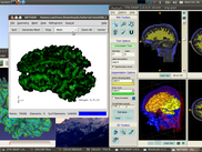 Biomedical modeling with ITKSnap, Meshlab and Netgen