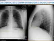 Review x-ray images