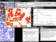 Nucleus stained sample image score and the corresponding histogram profile