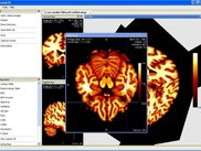 Nukak3D Medical Image Viewer, DICOM Support