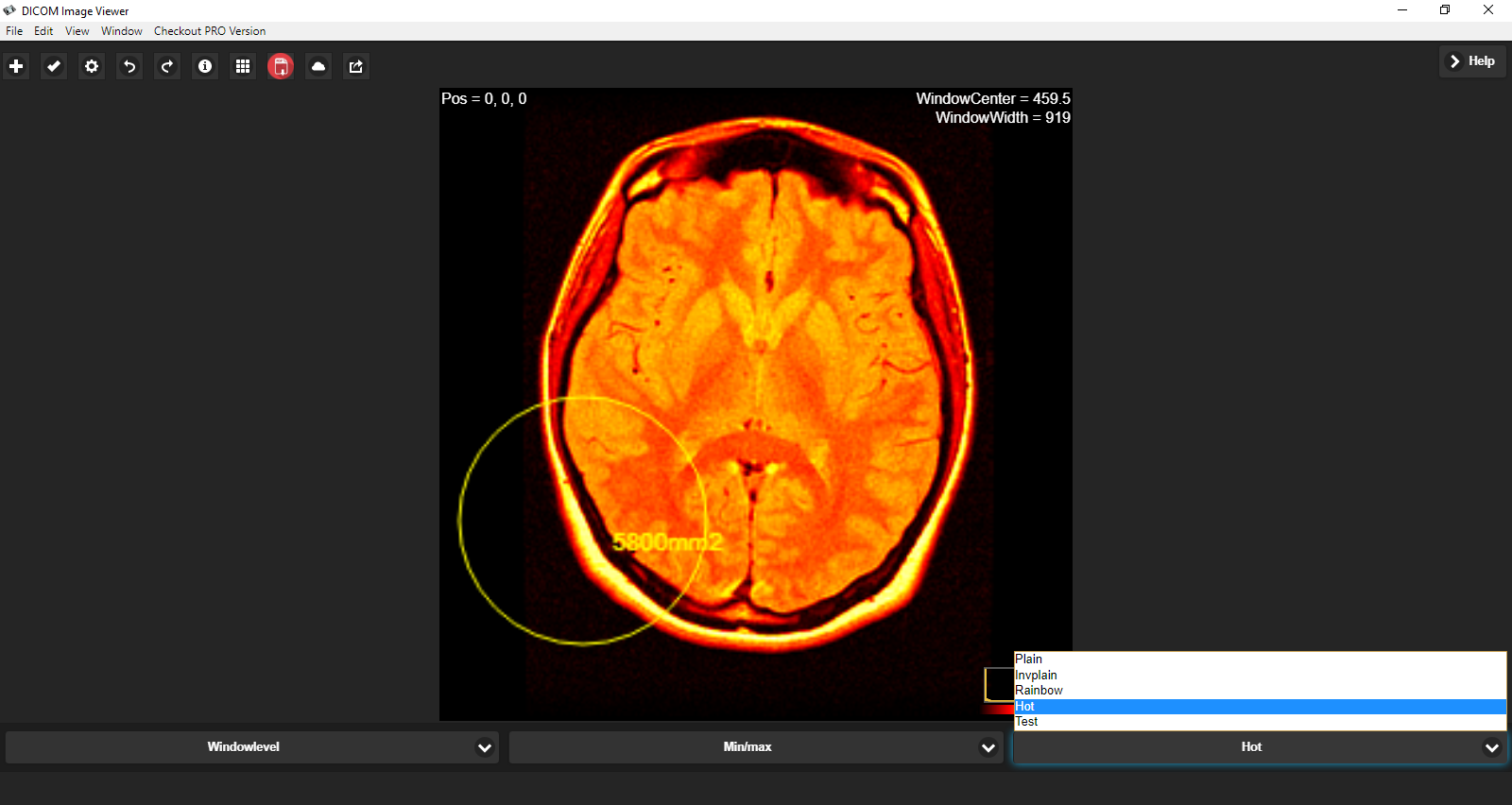 Dicom viewer sourceforge