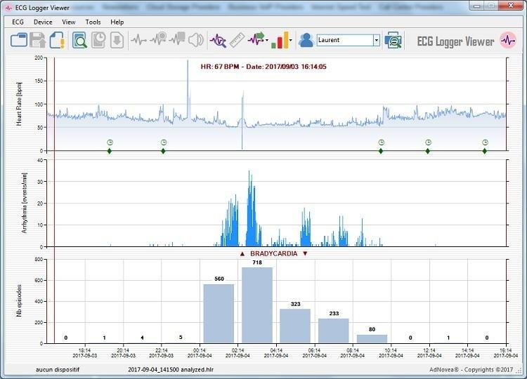 ECG Logger Viewer download | SourceForge net