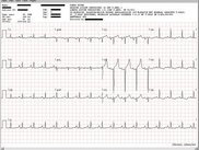 The ECG Viewer included in the Toolkit