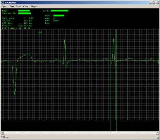 C# ECG Toolkit download | SourceForge net
