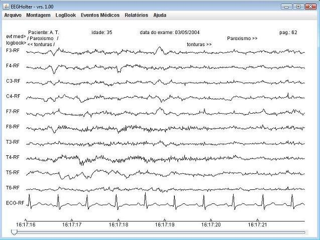 EEG-Holter download | SourceForge net