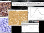 Cytoplasmic stained sample image score and the corresponding histogram profile