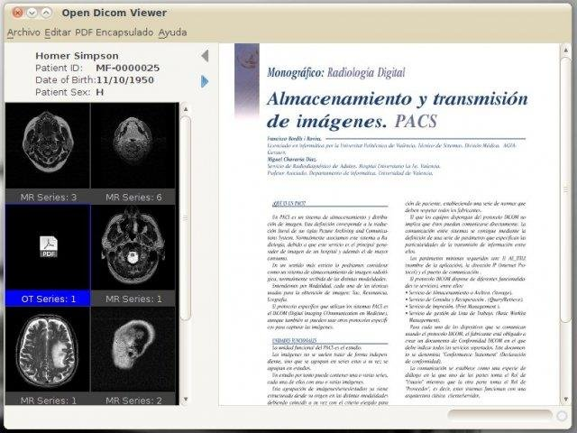 Open source pdf viewer