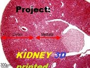 Project Kidney 3d Printed Logo