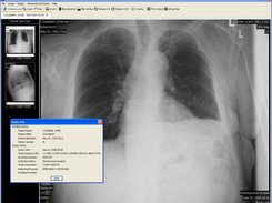 Chest X-Ray and Study Info Dialog
